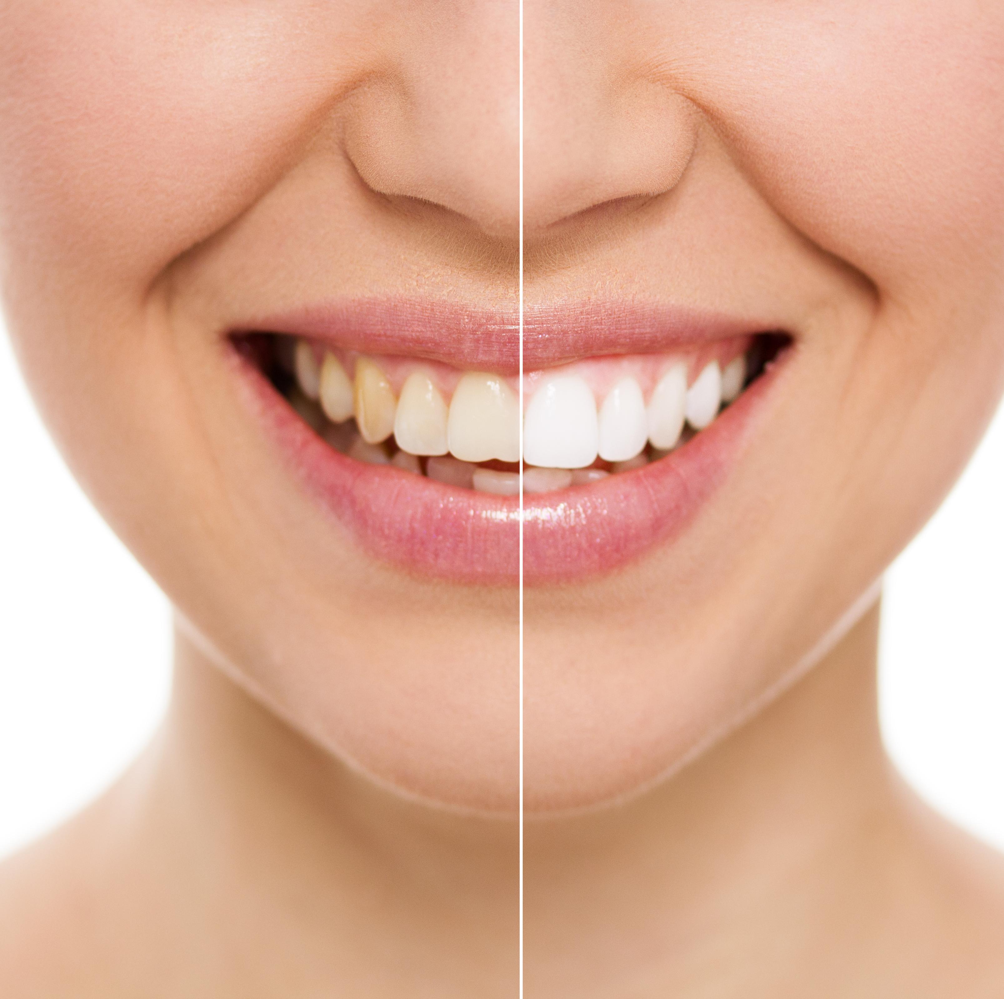 Branqueamento Dentário Laser