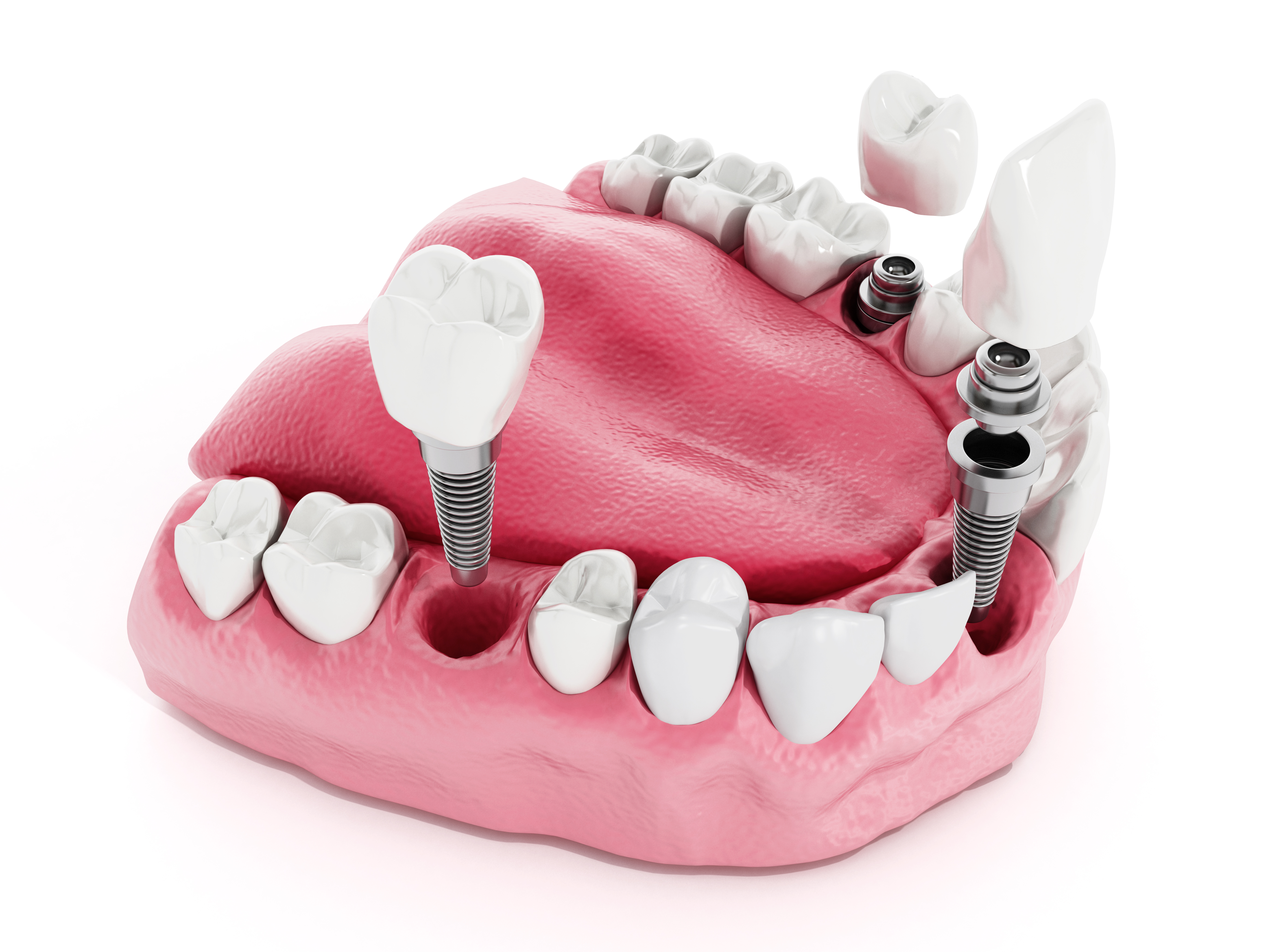 demonstração de como aplicar implante dentário